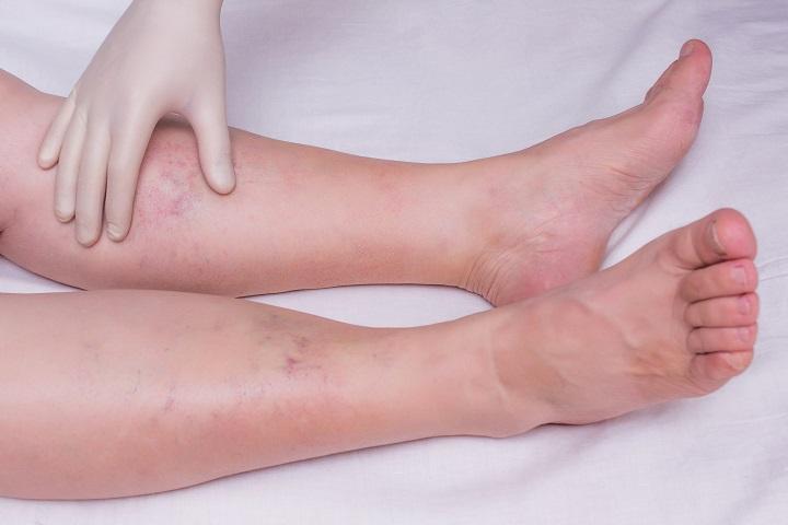 hogyan lehet kimutatni a varikózisokat a lábakon