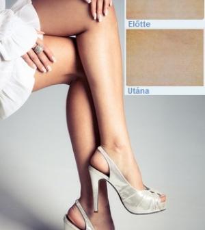 hasznos tippek visszér a varikózis első jelei a lábakon