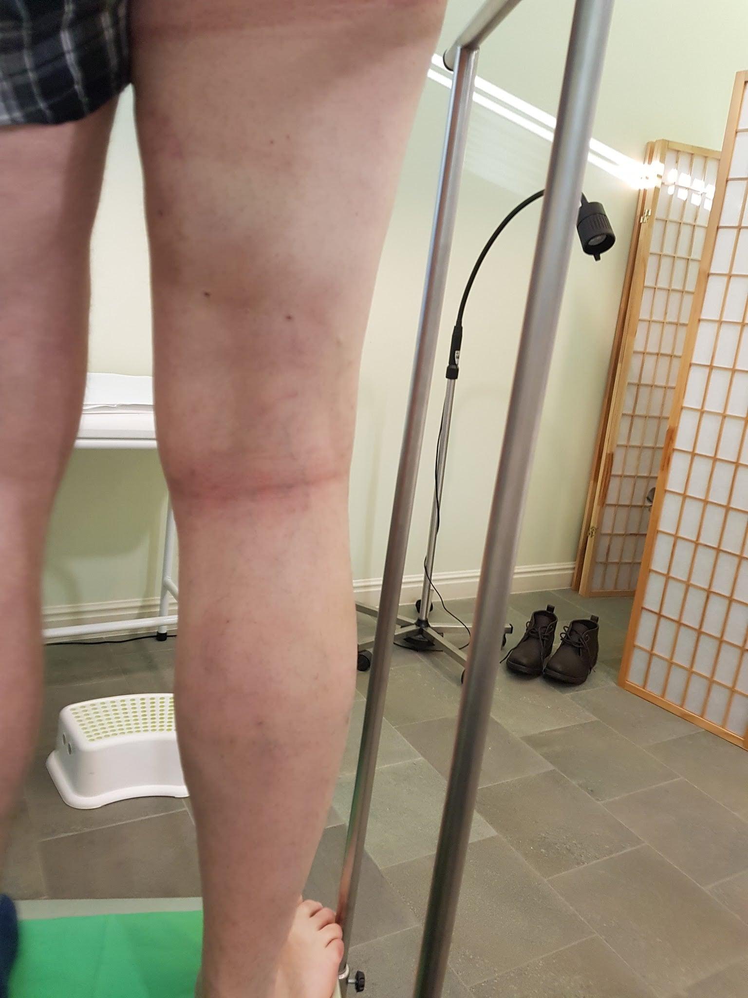 amikor visszérműtét után dolgozhat hideg pakolás a láb visszerek esetén