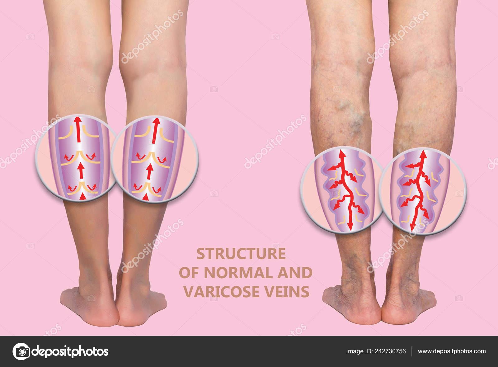lábcsavarodás van visszér