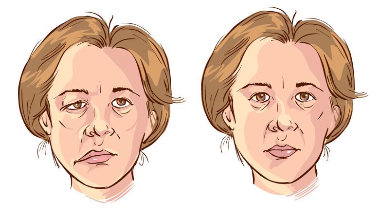 hogyan lehet otthoni arcon kezelni a visszérbetegségeket