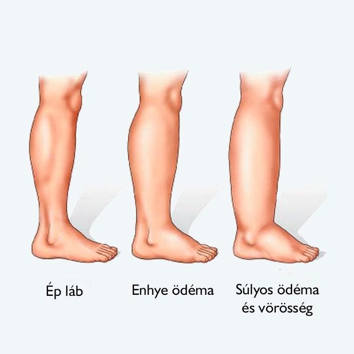 az alsó végtagok varikózisának műtétjei