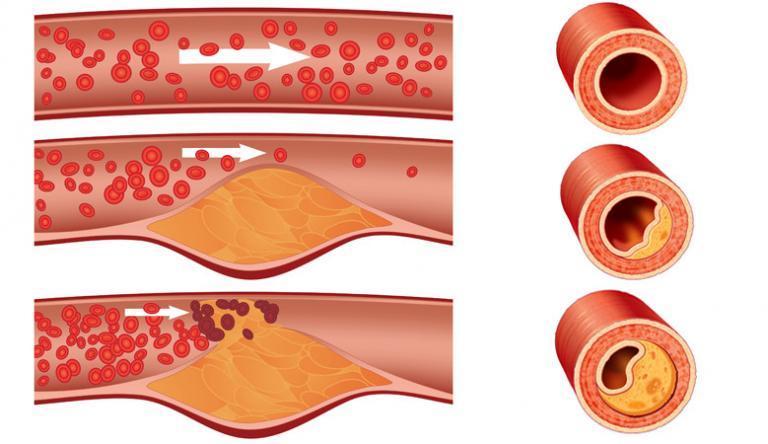 az orrszeptum visszér visszér és alacsony hemoglobinszint