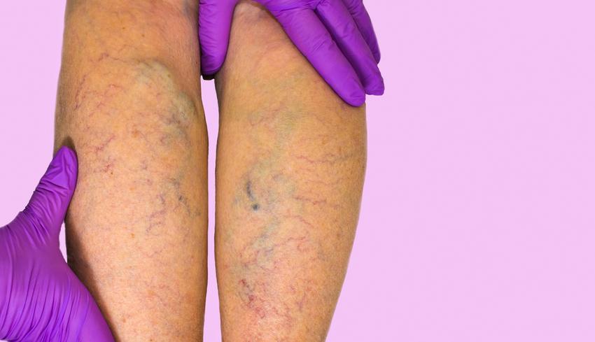 visszér a terhesség alatt a lábon hogyan működnek a vénák a visszér ellen