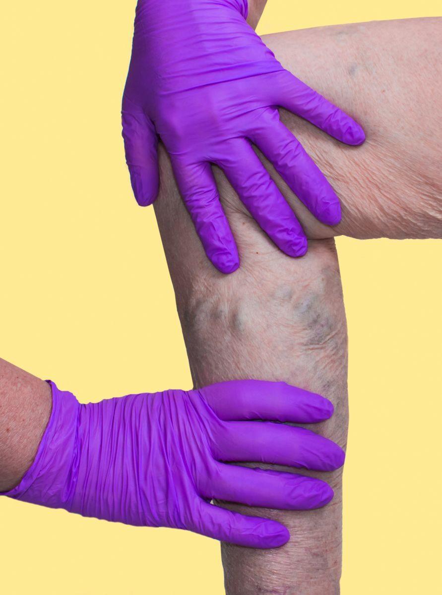 visszér és a lábak bekötése rugalmas pólya térdig érő varikózis
