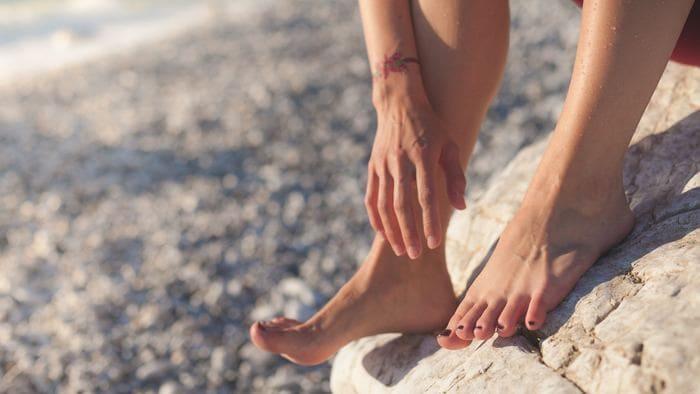a lábak visszérrel mit kell tenni