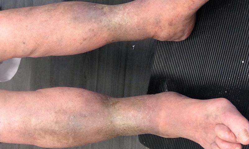 fekélyek a visszéren kezelje a lábfájást visszérrel