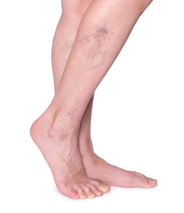 visszerek a lábakon műtéti úton a lába feketévé válik visszerekkel