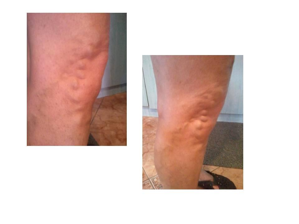kiütés a lábakon visszér kezelés hipertóniás kötés a visszér ellen