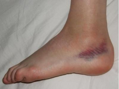 a lábak hardveres nyirokelvezetése a visszér ellen