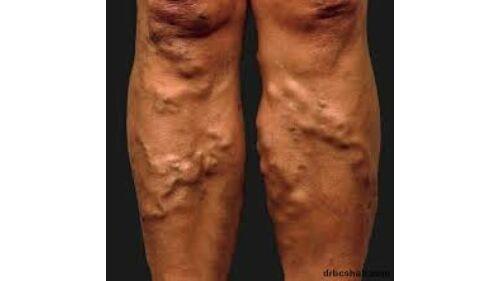 visszér a lábak népi kezelés