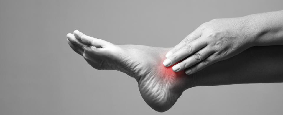 hogyan lehet elkerülni a lábak varikózisát