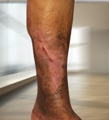 phlebodia visszérből vélemények ár visszér, alsó lábszáron zúzódásokkal