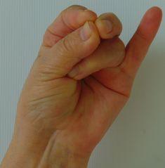 Erős antioxidáns: a vöröskáposzta-csíra | Tiszta Forrás