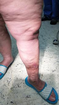 lábfekély visszeres tünetekkel