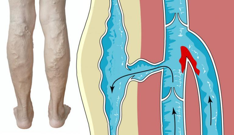 összeesküvés a visszerek a lábak erős lábfekélyek visszér