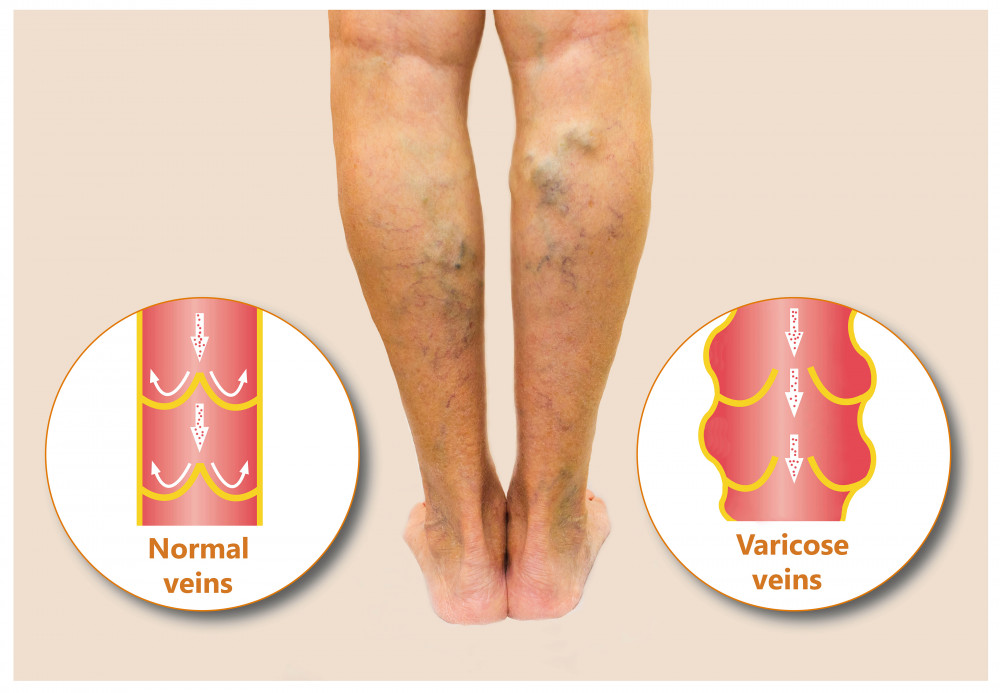 visszér és a lábak bekötése infúzió visszerek kezelésére