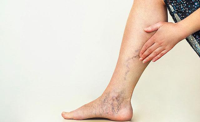a lábak visszerek miatt fájnak