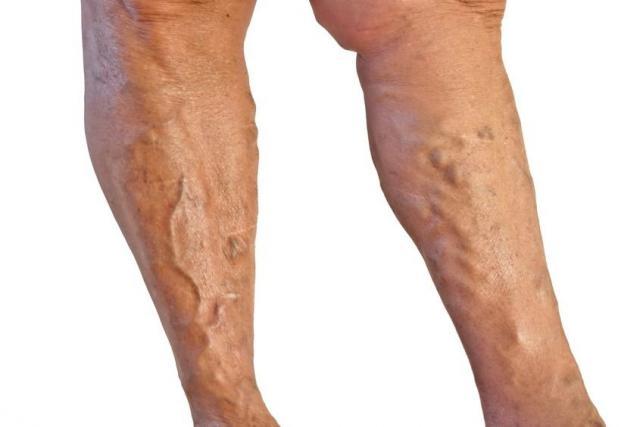 lábak fel a visszér visszér lézeres kezelése Kryvyi Rih