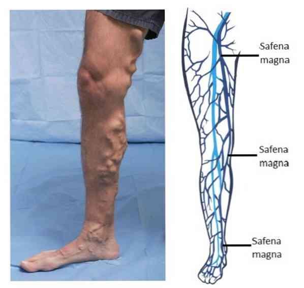a bőr a varikózus vénákkal változik visszér és oszteopátia