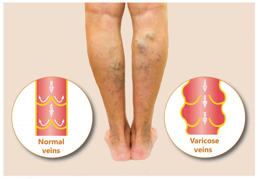 a láb fáj a kismedence visszérével visszér a lábon megfelelő táplálkozás