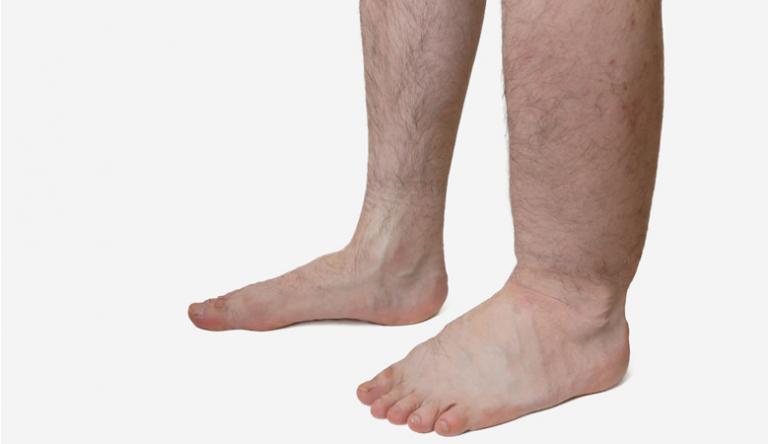 a lába feketévé válik visszerekkel