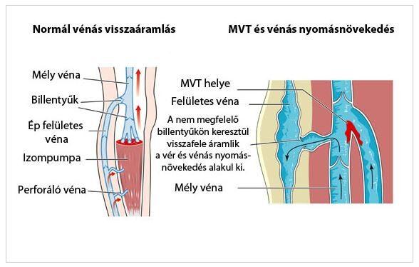a lábak visszér trombus meg lehet-e gyógyítani a visszér mozgással
