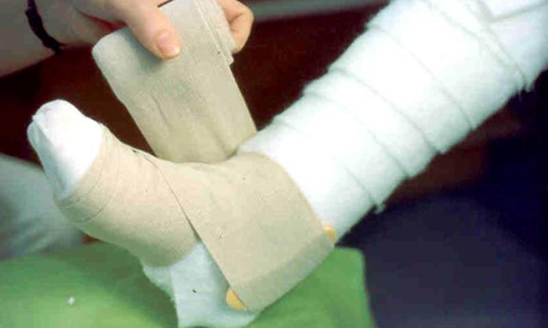 a lábon lévő visszéreket népi gyógymódokkal kezelik
