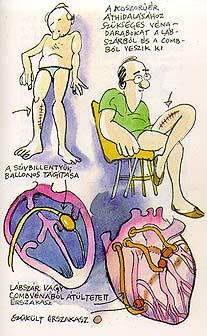 belső visszér alternatív kezelés