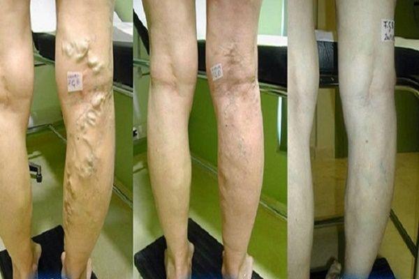 a lábak varikózisának orvosi kezelése