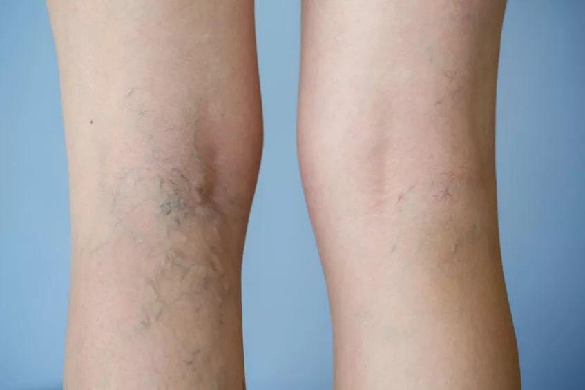 a varikózis a lábakon terhesség alatt kezdődik
