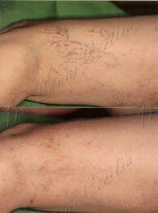 a lábak visszérének lézeres kezelése vélemények Agapkin orvos tanácsai a visszér ellen