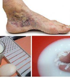 lábfájás retikuláris visszérrel