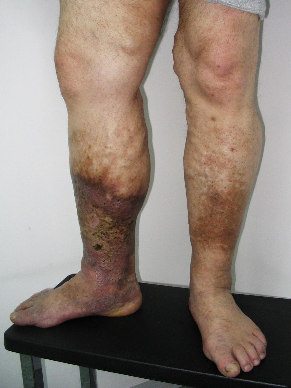 az alsó végtag mély visszér tünetei