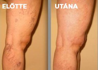 visszér a lábakon kezelés műtét gyógyszerek visszér fotó