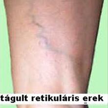 visszér a lábakon gyulladás