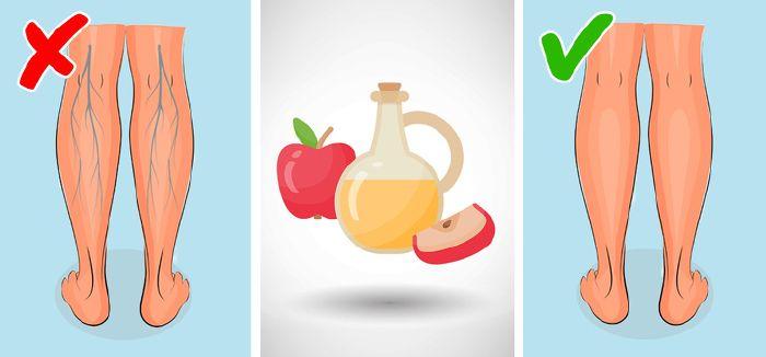 visszér kezelése nyers ételekkel ecet a visszér gyógymódjaként