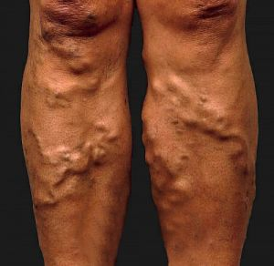 visszér a futó lábakon a műtét típusa visszér
