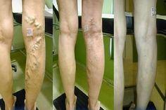 visszér a lábakon okoz gélek visszér és thrombophlebitis esetén