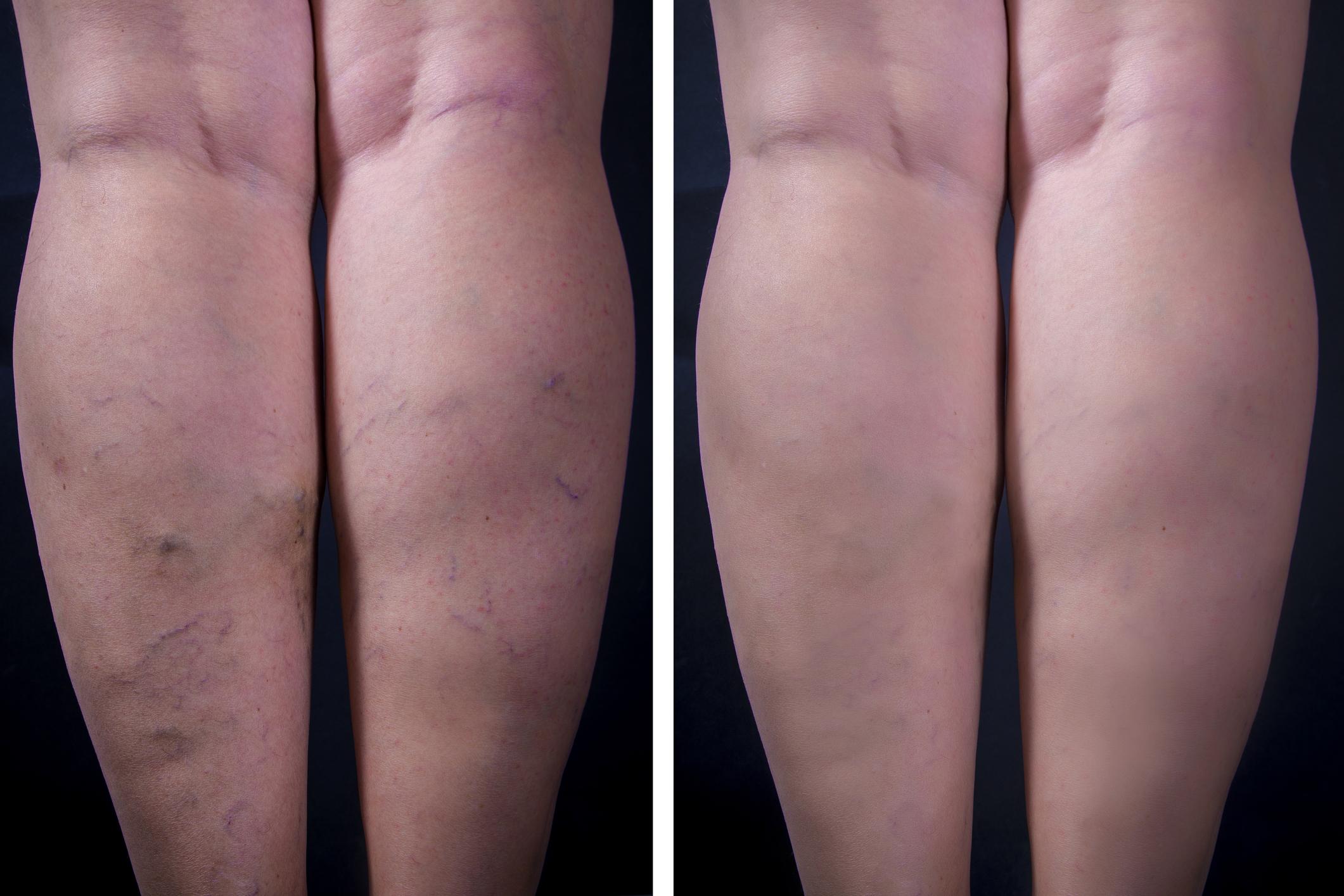 a varikózis első jelei a lábakon