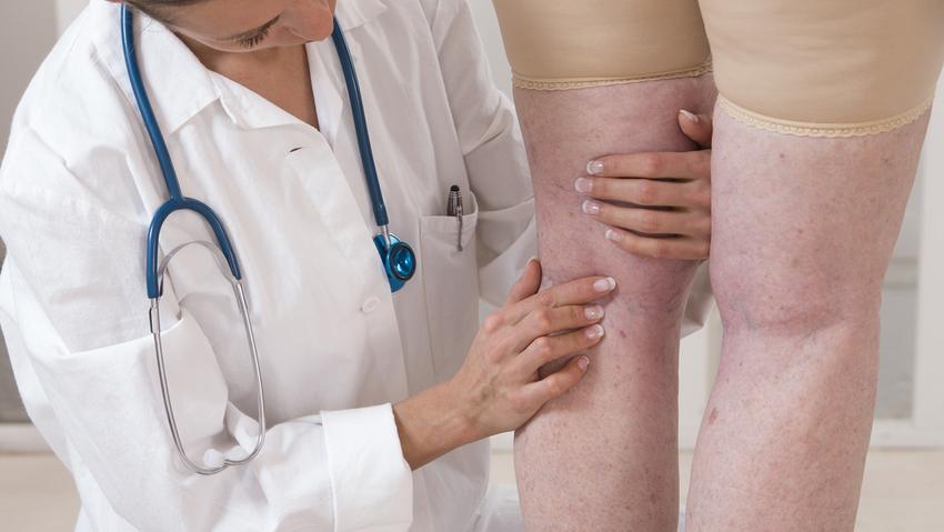 Mi okozza a phlebitis-t a karon és milyen kezelés szükséges az ereknél - Magas vérnyomás