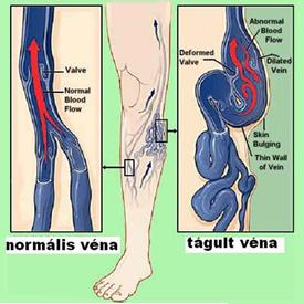 rehabilitáció műtét után láb visszér mekkora a varikózis okozta töltés