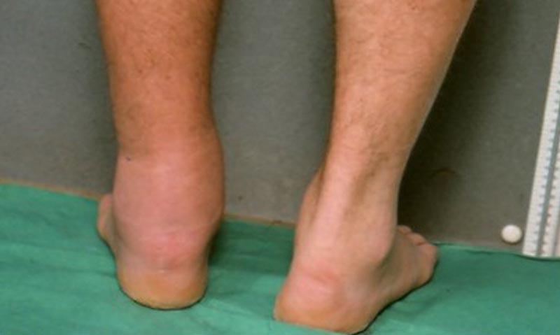 Műtét utáni vizenyő kezelése