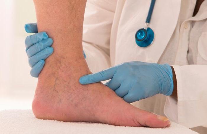 visszér vasculitis kezelése