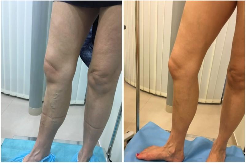 fotó a visszerek szkleroterápiája előtt és után