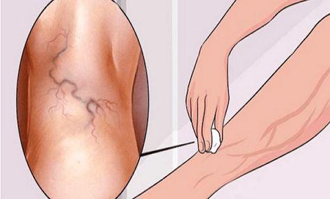 hogyan kell kezelni a duzzanatokat a visszérrel visszér a lábakon kezelés népi orvoslás