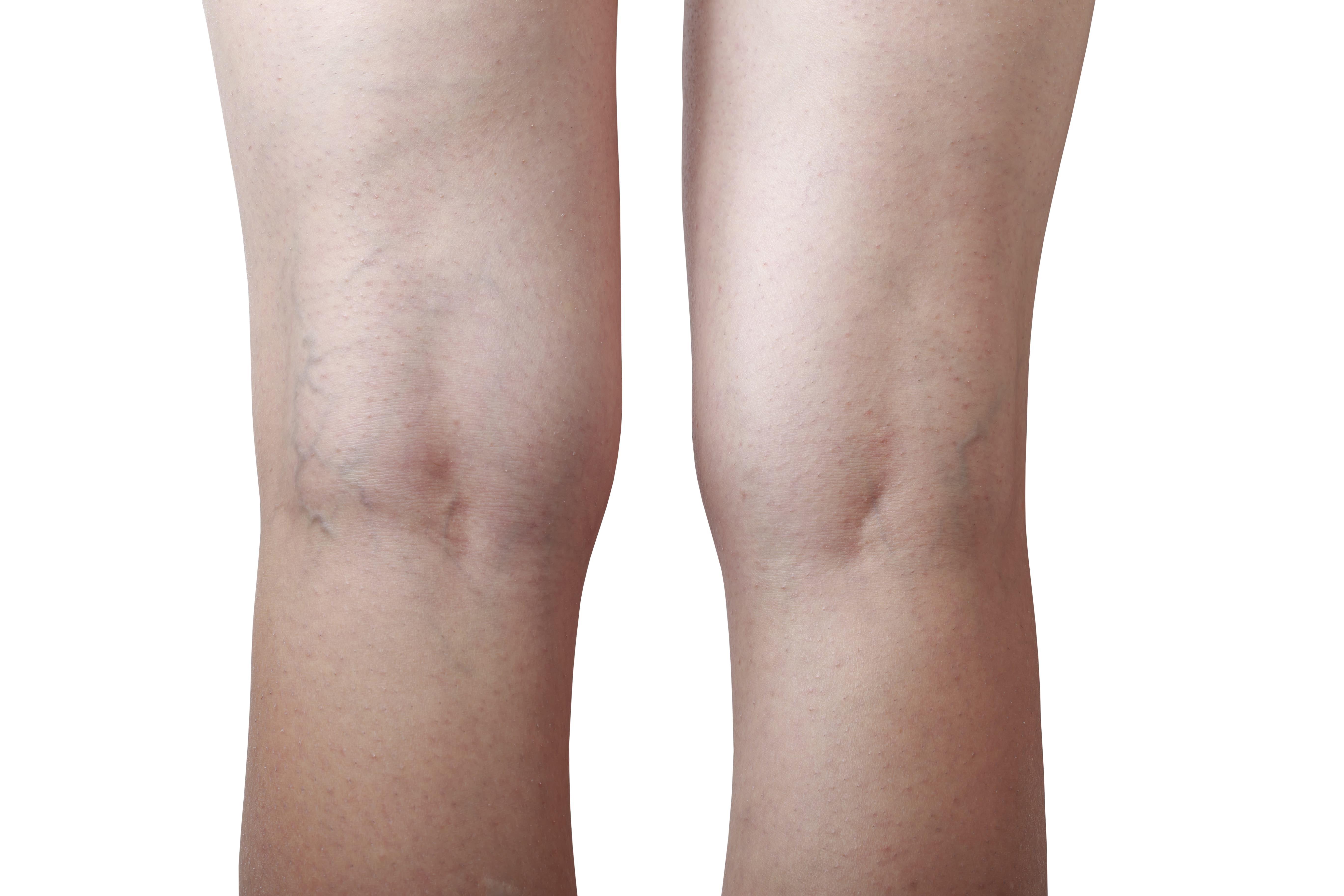 a lábakon lévő visszerek kezelése gyógyszerekkel