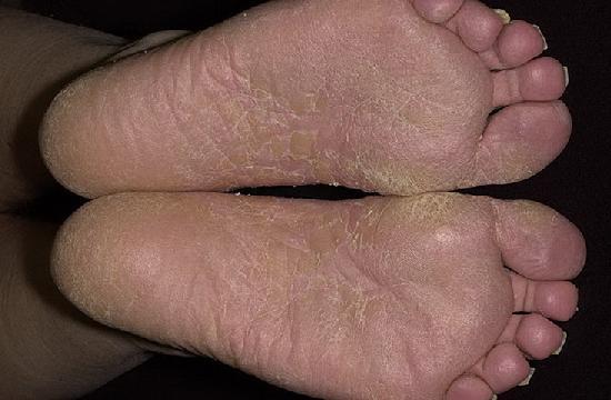 Milyen fájdalmas lábak vannak a varikózisban? - Kezelni
