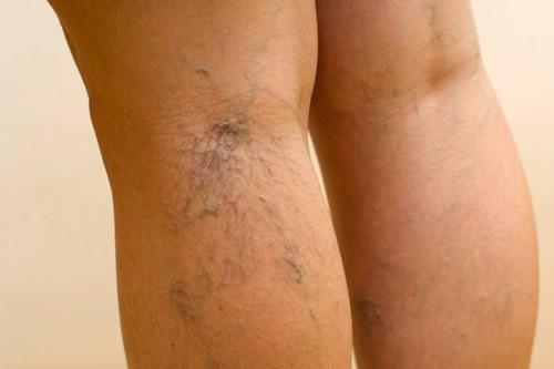 kapilláris torna visszerek hogyan kell kezelni a visszereket a lábakon
