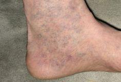 kick-box és visszér visszér, melyik láb fáj
